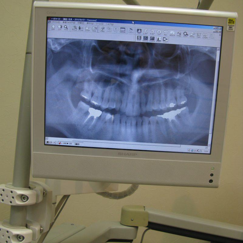 三度目の歯医者さん